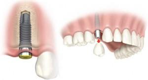 implantes dental