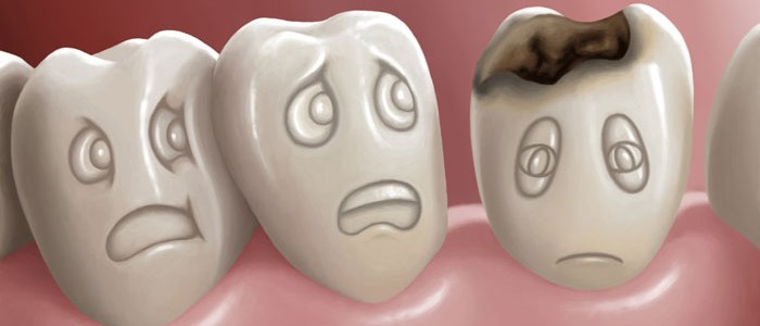 ¿Que es la caries Bucodental?
